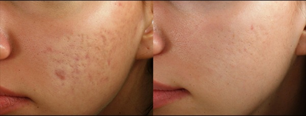 PRP with a combination of micro needling for acne and scar reduction treatment in Yorktown Heights, ny