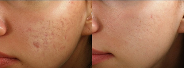 PRP with a combination of micro needling for acne and scar reduction.