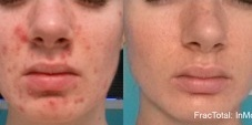acne and scar reduction fractora treatment - beautyscripts yorktown heights ny