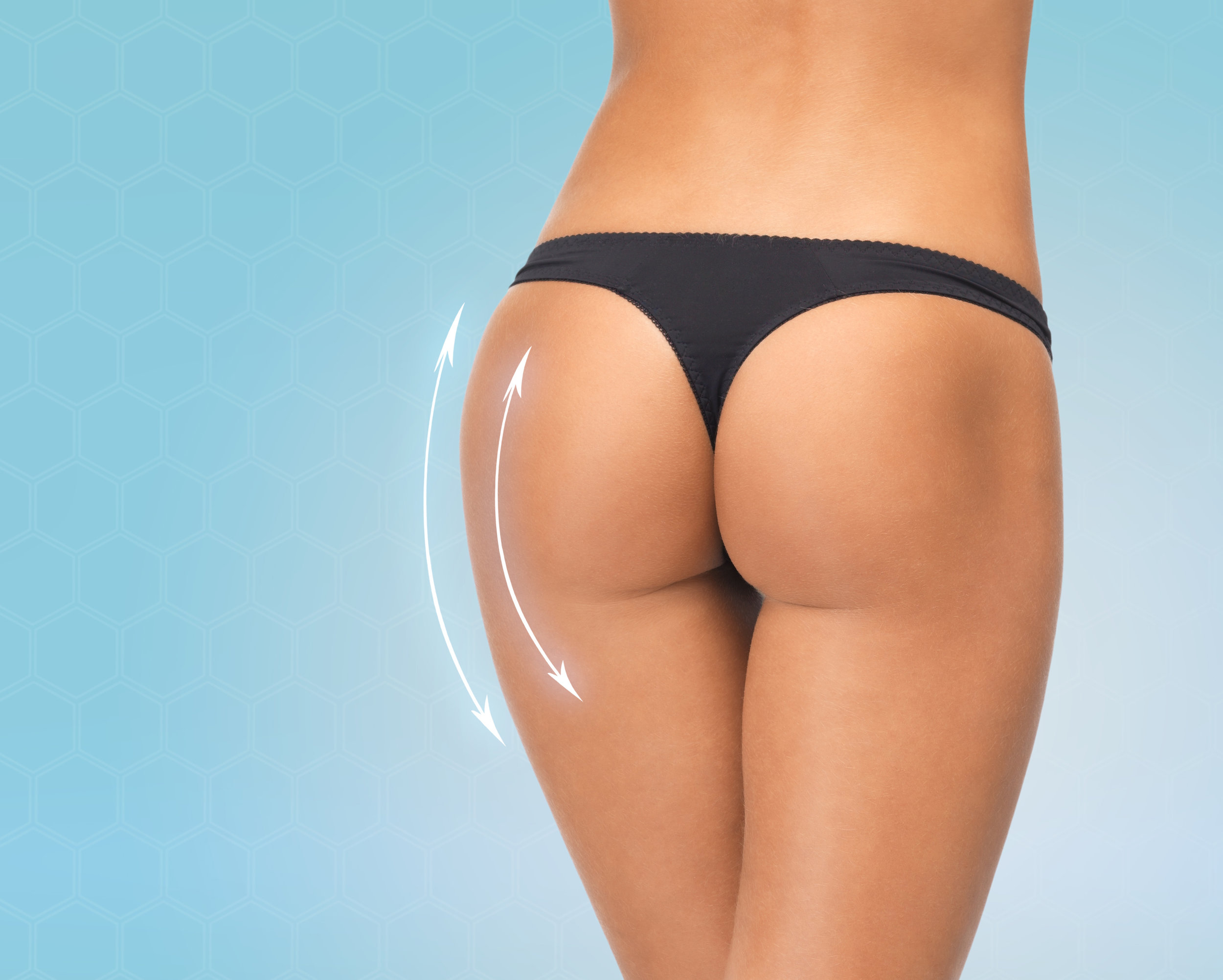 beautyscripts medical aesthetic practice specializing body contouring & cellulite reduction - yorktown heights, ny