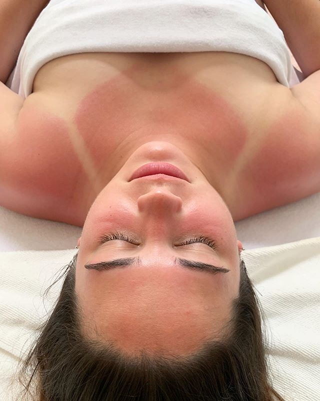 My lovely client from yesterday came in with a pretty intense sunburn but left with soothed and hydrated skin💧We used gentle cleansers and serums from @roccocobotanicals, a nourishing, custom-made massage oil from @tenderflower.botanicals, and a rose hydrojelly mask to finish! Swipe for the before photo🌞 . . . . . #facial #facialtreatment #facialmassage #sunburnrelief #corneotherapist #skincare #skincareroutine #skincaretips #skintreatment #beautifulskin #dryskin #oilyskin #lymphaticfacial #facemask #hydrojellymask #esthemax #roccocobotanicals #naturalbeauty #naturalskincare #brows #lashes #beautytips #beauty #esthetics #esthetician #estheticianlife