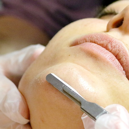 Dermaplaning - 30min $50 | Add to Facial $30Dermaplaning is a simple and safe procedure that gently uses a surgical steel blade to exfoliate the epidermis and ridding the skin of fine vellus hair (peach fuzz). As a standalone service, dermaplaning includes facial cleansing and moisturizing, or it can be added to any of our full facials.