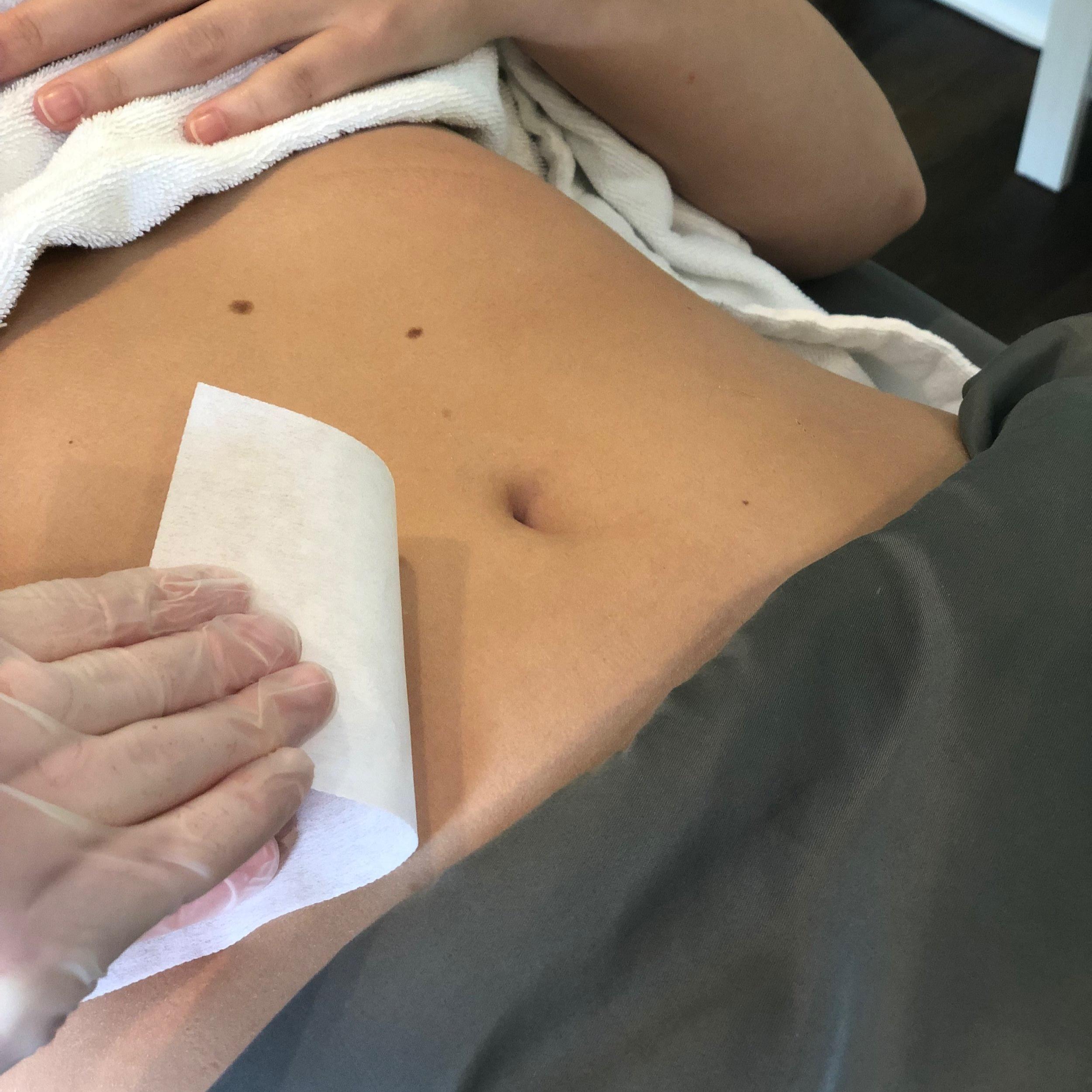 Stomach - $30