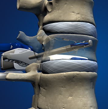 1. A coil is advanced to create a path through the vertebral body bone and provide a pathway for the Kiva Implant.