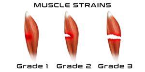 Muscle-Strains-850x425-300x150.jpg