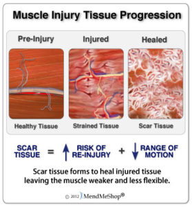 muscle-injury-tissue-progression-279x300.jpg