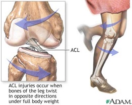 ACL_Injure.jpg