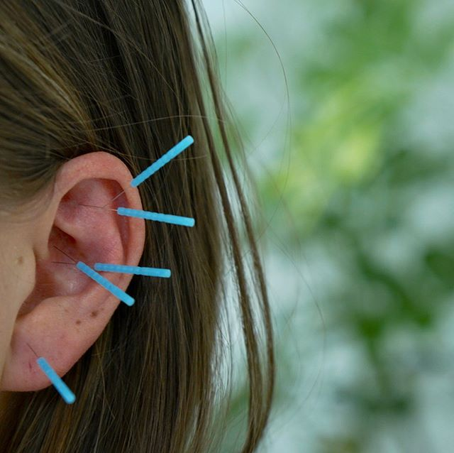 Community ear clinic tomorrow in Ojai! 10-1:30 We can treat the entire body through the microcosm of the ear. Walk-ins welcomed! DM or email for info.  #ojai #earacupuncture #acupuncture #ojailove #ojaienergetics