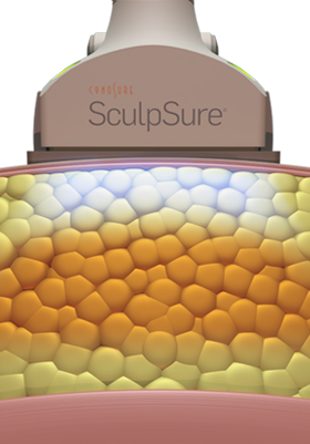 nyc-adl_sculpsure-3.png