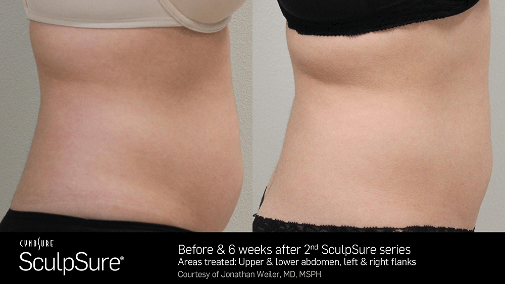 nyc_adl_sculpsure03.png
