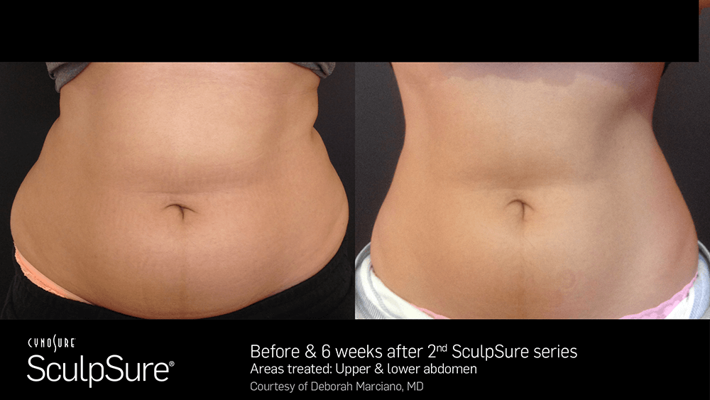 nyc_adl_sculpsure06.png
