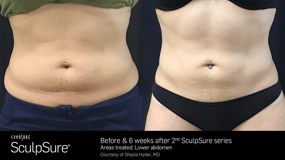 nyc_adl_sculpsure07.png