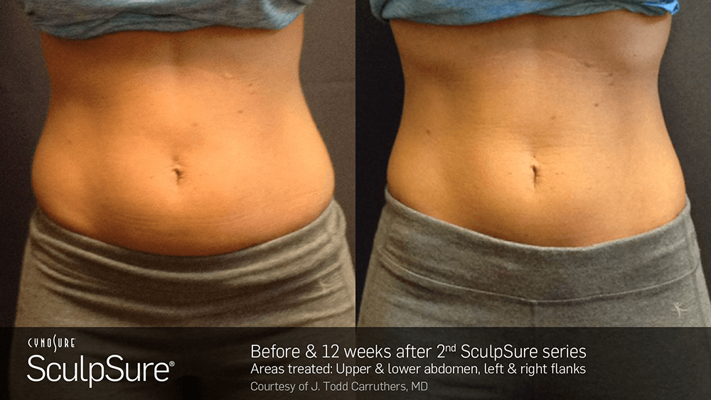 nyc_adl_sculpsure08.png