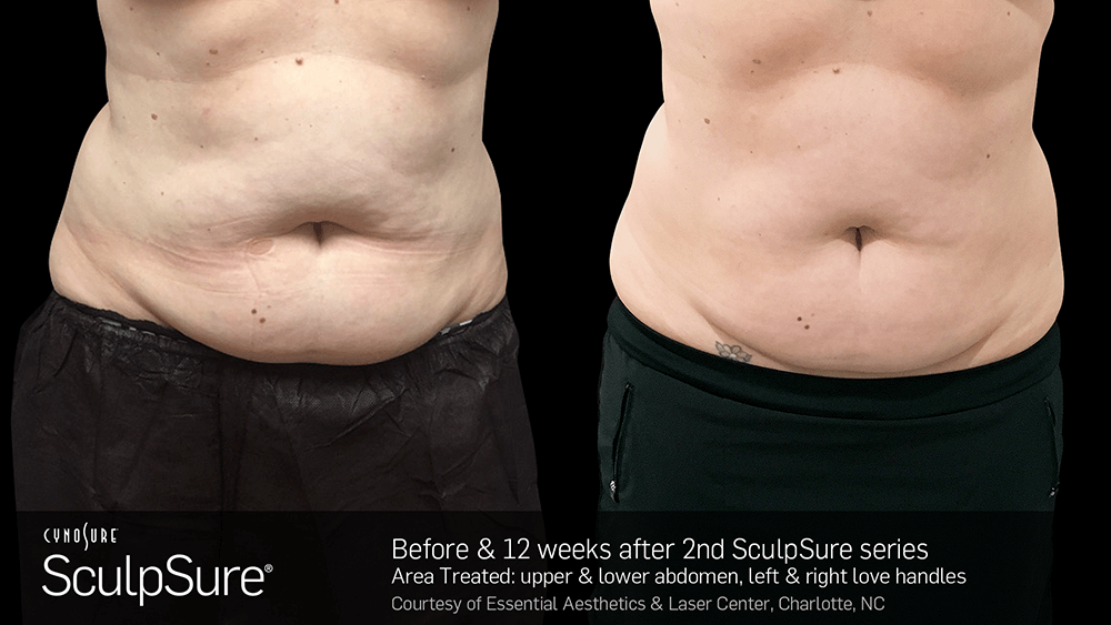 nyc_adl_sculpsure010.png
