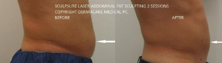 adl-nyc-sculpsure-091.png