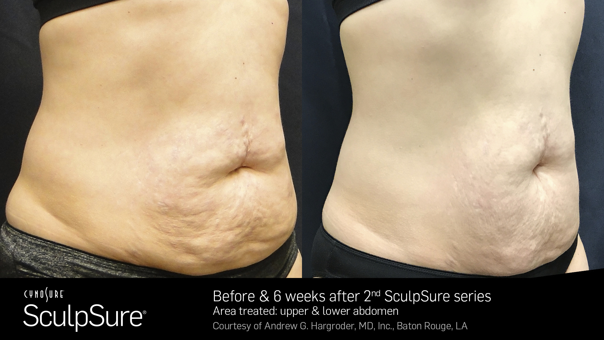 SculpSure-Core-Before-and-After--Female-11.jpg