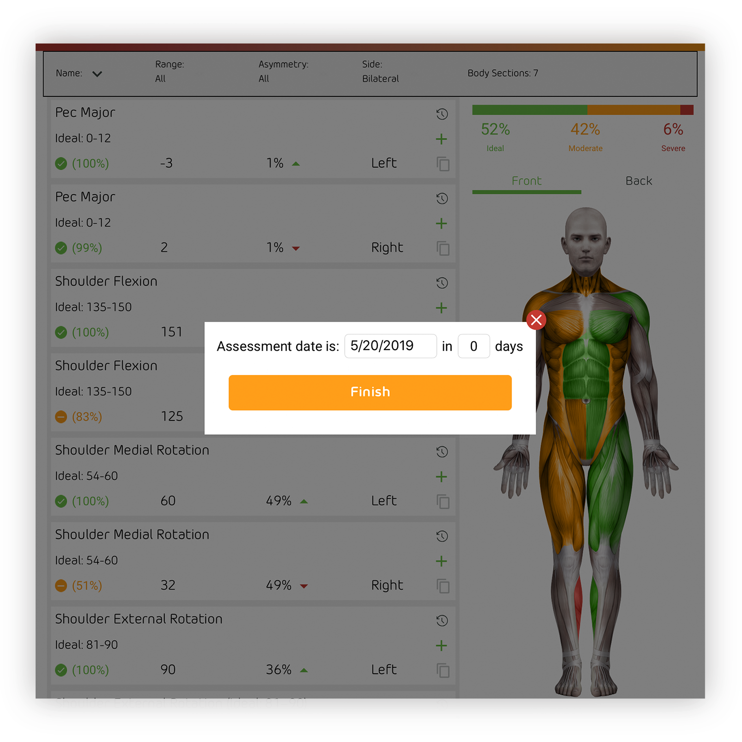 Re-Assessments - A re-assessment date is scheduled to monitor for changes in the Severe, Moderate, or Asymmetrical measurements addressed in the Custom Flexibility and Mobility Program. The Custom Flexibility and Mobility Program is updated accordingly.