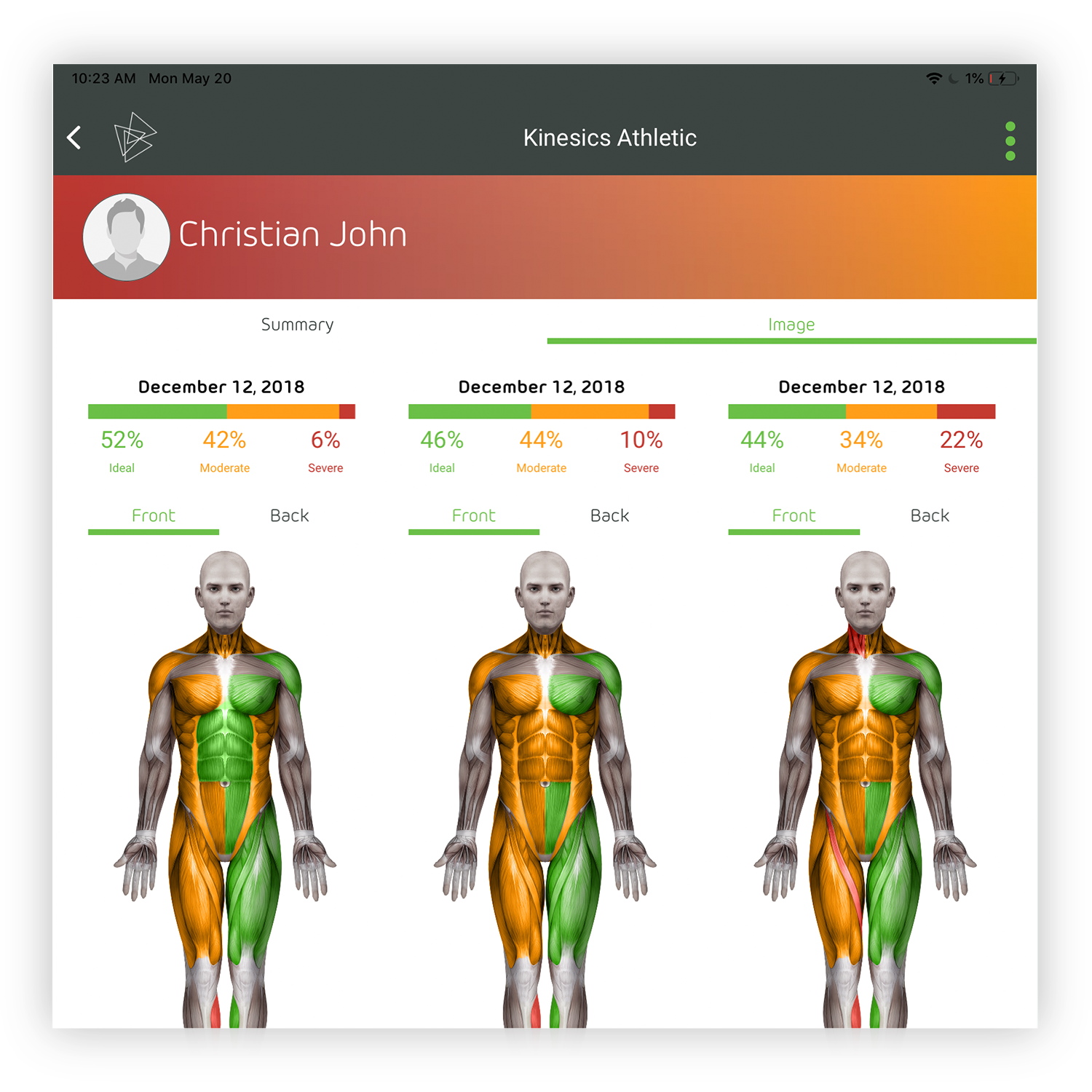 In-app Comparative Reporting - Up to 3 Individual Body Index Cards can be selected for comparison. Comparisons can be viewed in global or granular view. Compare up to 3 evaluation data sets by viewing the percentage of ideal for the entire body, per body segment, or on the Body Avatar which represents a per measurement view.