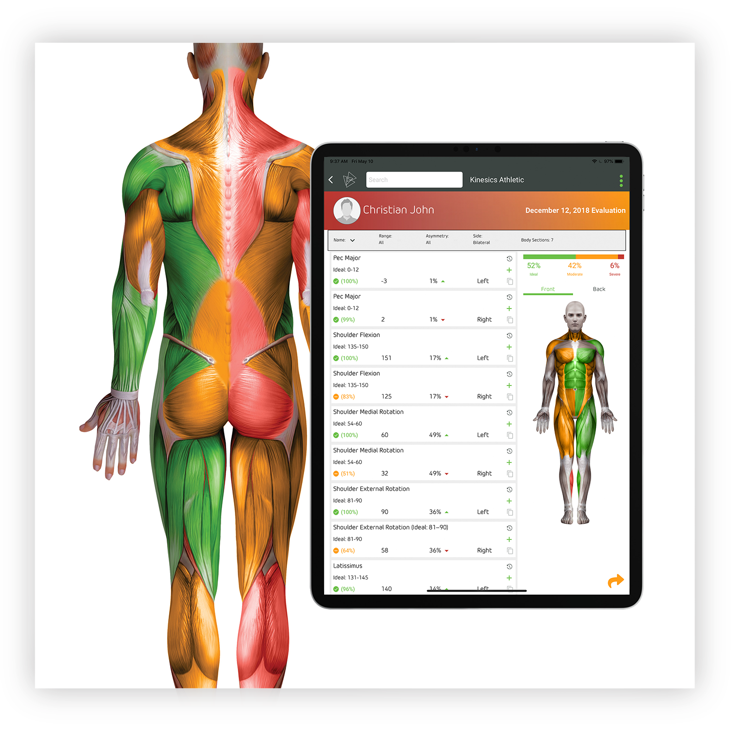 Results - Generate results in 1-click. Kinesics App Results Report provides a multi-level view of musculoskeletal health for the overall body, per body segment, and per measurement.Get a full picture of the musculoskeletal system's muscle balance, alignment, and symmetry in 1-click. Reports feature a color-coded body avatar, each measurement's percent of ideal, the percent of asymmetry from right to left, and the overall percent of ideal for the whole body. Re-evaluate and compare results over time to monitor progress—it's that simple.