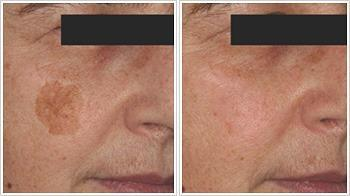 Pigmentation-Before-and-after-IPL2.jpg