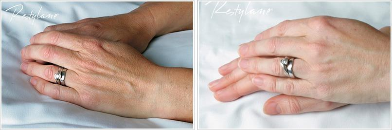 Restylane-hands-vital-before.jpg