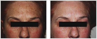 IPL-before-and-after (1).jpg