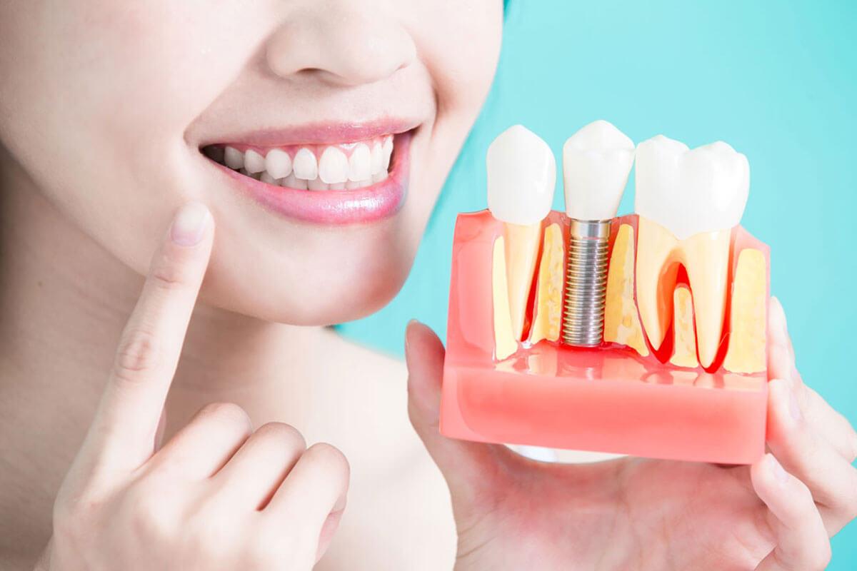 Theresa Frank DDS   Sunnyvale Dentist