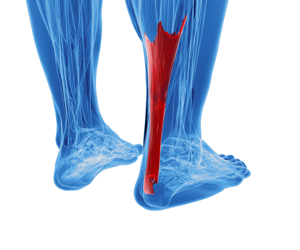achilles tendinits treatment by podiatrists and foot specialists in westmoreland county