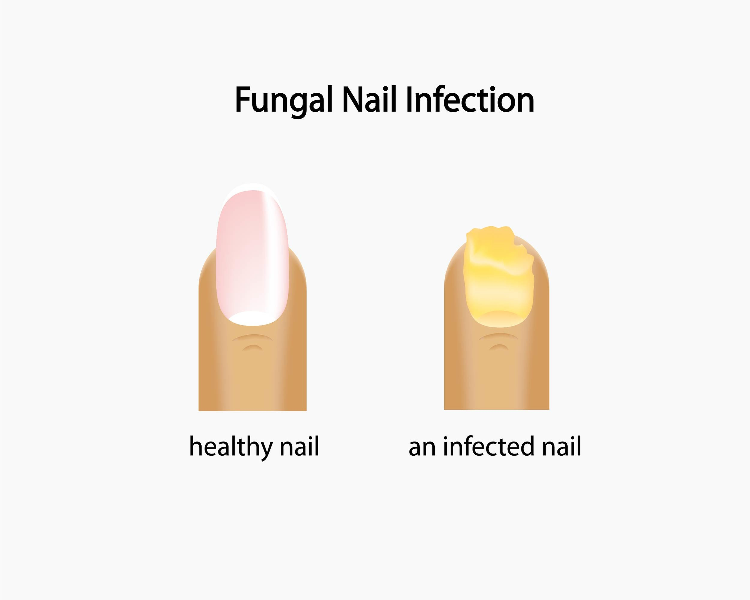 nail restoration and treatment for toenail fungus by foot doctors in irwin and greensburg pa