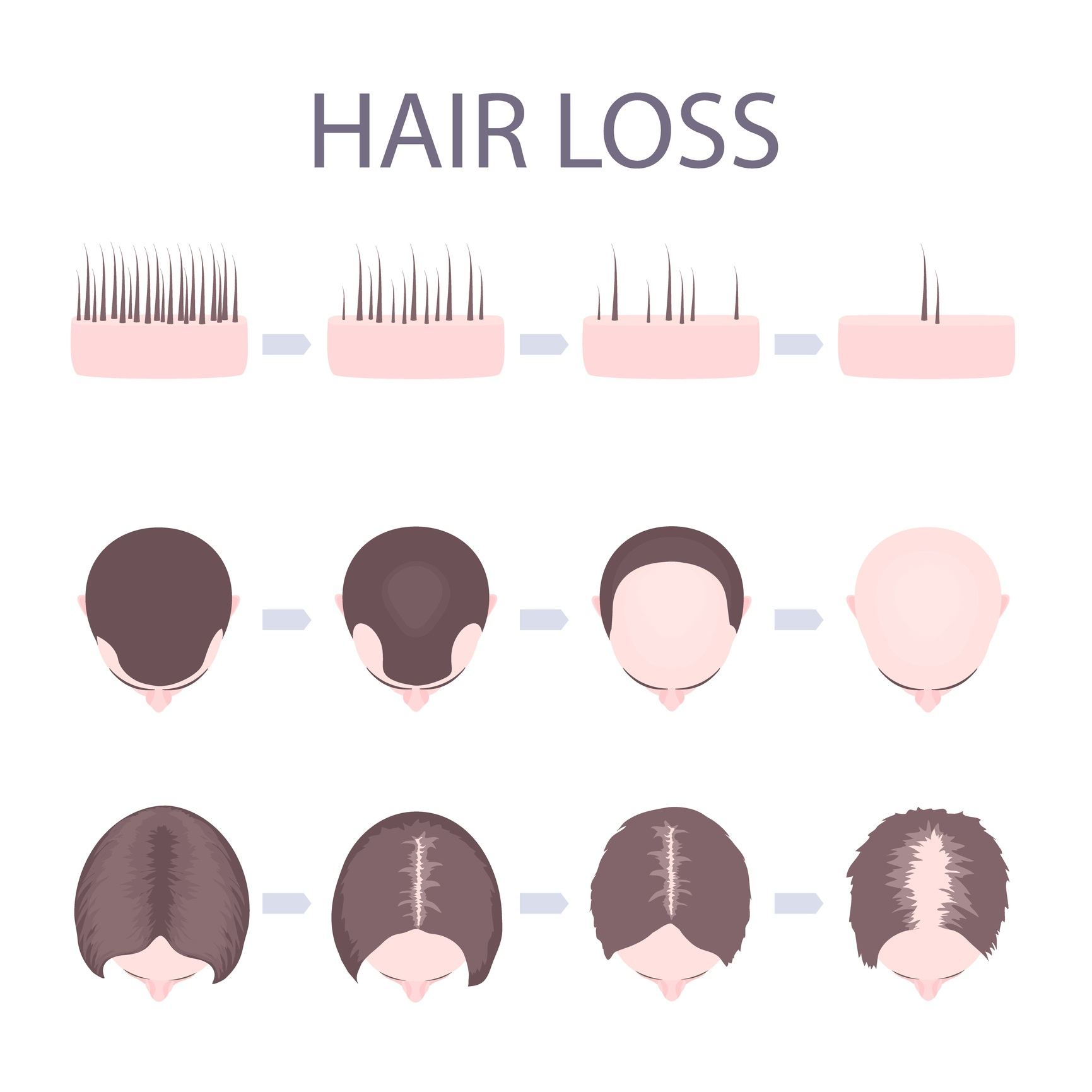 male-and-female-hair-loss