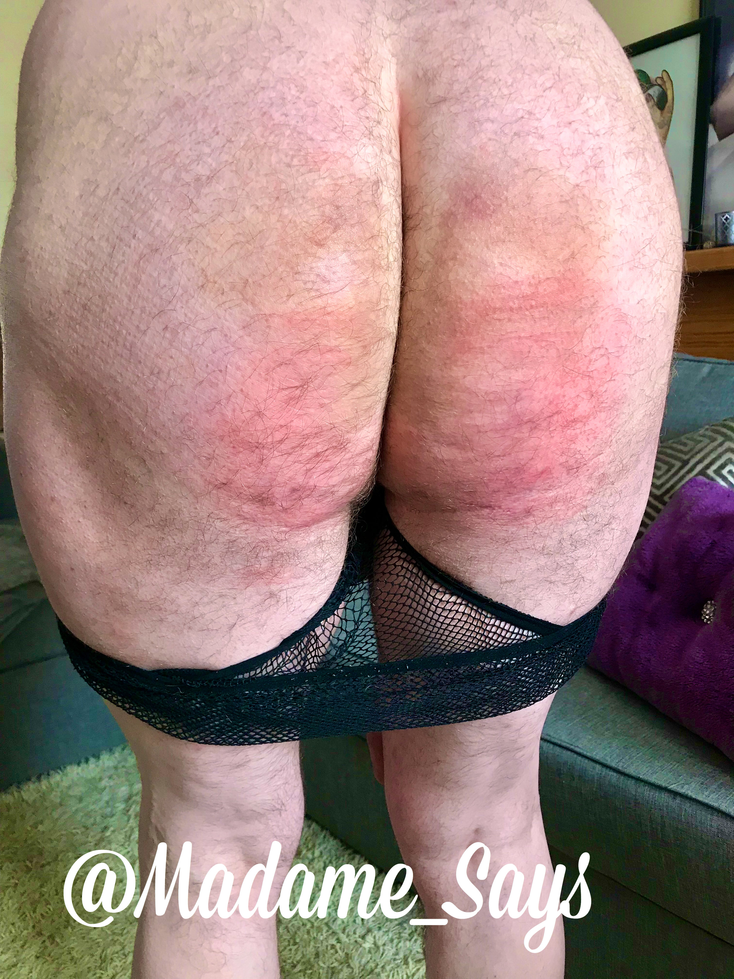 caned-bum
