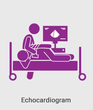 Echocardiogram.jpg