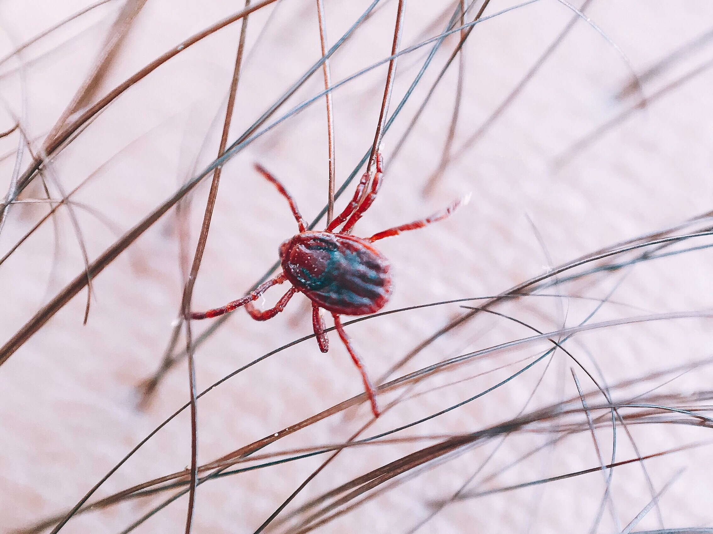 A tick clinging to hair shafts