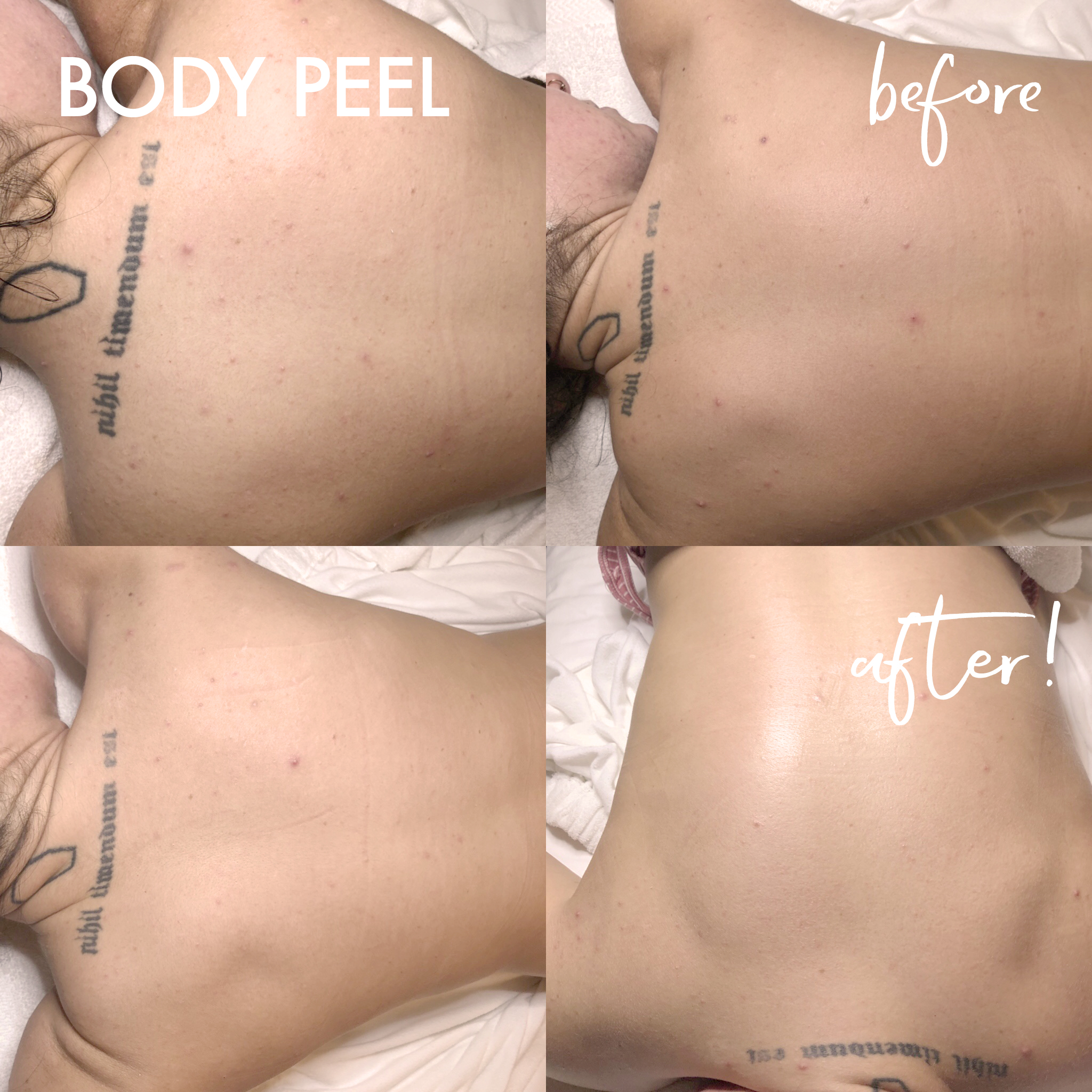 BEFORE AND AFTERS_bodypeel2.jpg