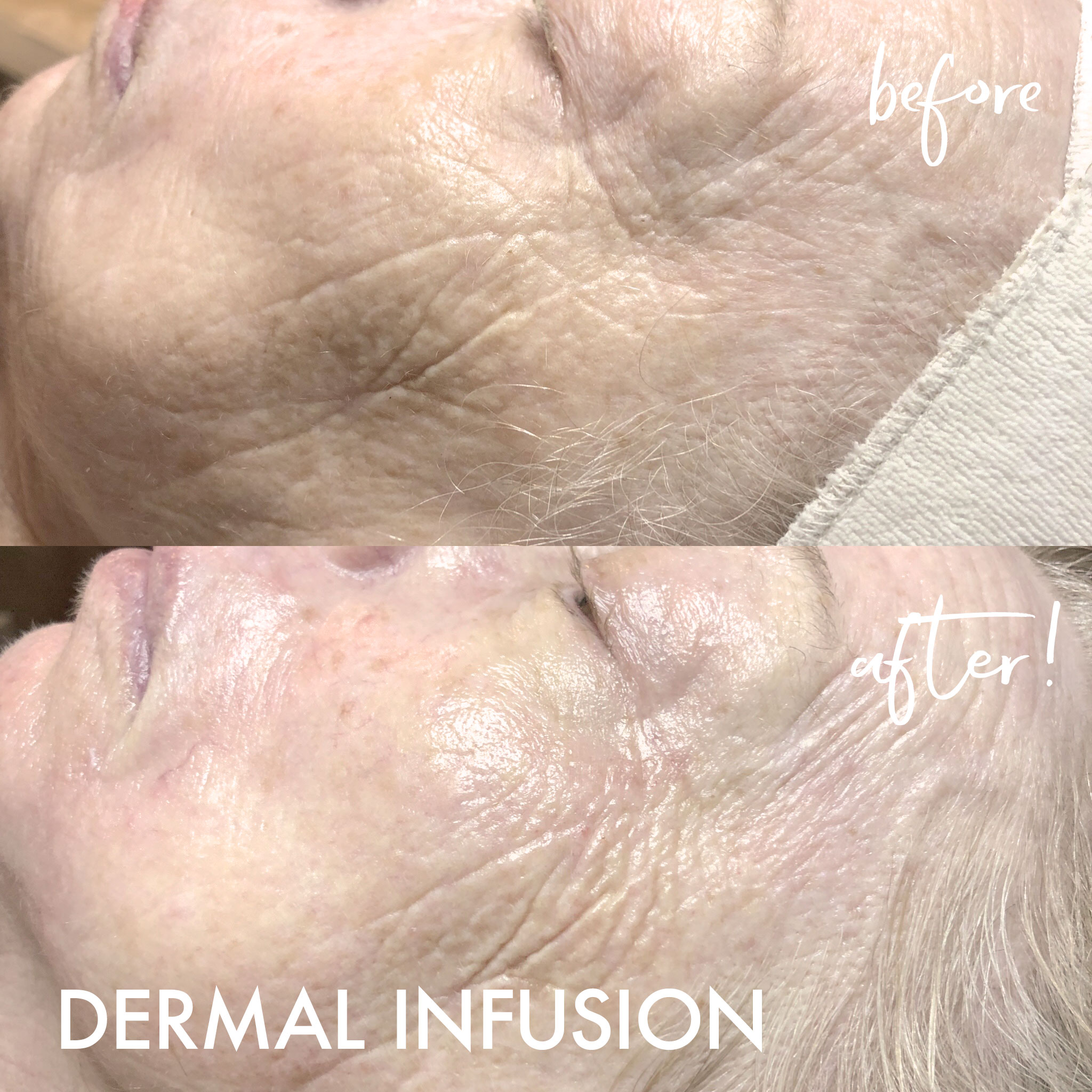 BEFORE AND AFTERS_dermalinfusion4.jpg