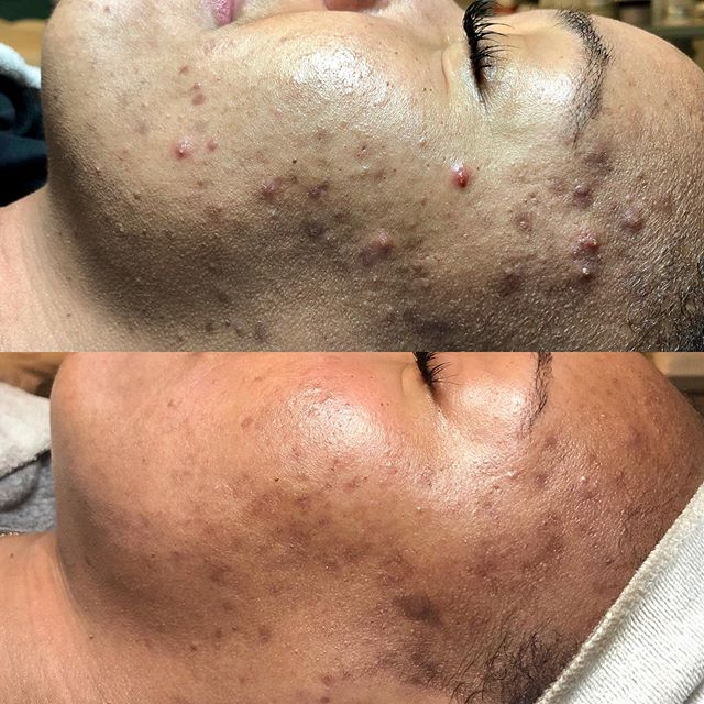 I had 1 month to work my magic. My client lives out of state and was getting married. She came back to the Bay Area and while she was here I was able to do a Dermal Infusion on her 3 times. So in 1 month I did a Dermal Infusion, Mandelic acid and A LOT of extractions. I also changed her home care routine adding a Salicylic cleanser, Brightening pads, Glycolic acid, Pigment gel, Apres hydrating balm and Spf. With only 1 month to work my magic I feel pretty good with the transformation of her skin! #felizduboisskincare #hardworkpaysoff #diligence #homecareroutine #dermalinfusion #chemicalpeels #extractions #gettingmarried #acnetreatments #envymedical #montclairvillage #oakland