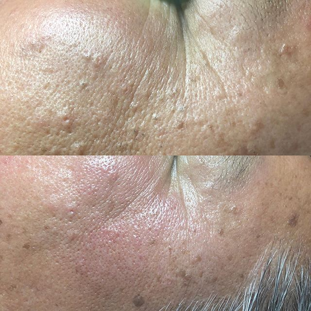 Soalr comedones affect areas that have been exposed to sunlight over a long period of time. This is my client who loves the sun! With a dermal Infusion treatment and extractions he is all cleaned up! #felizduboisskincare  #dermalinfusion #extractions #solarcomedones #facialtreatment #manfacials #metro #montclairvillage #oakland