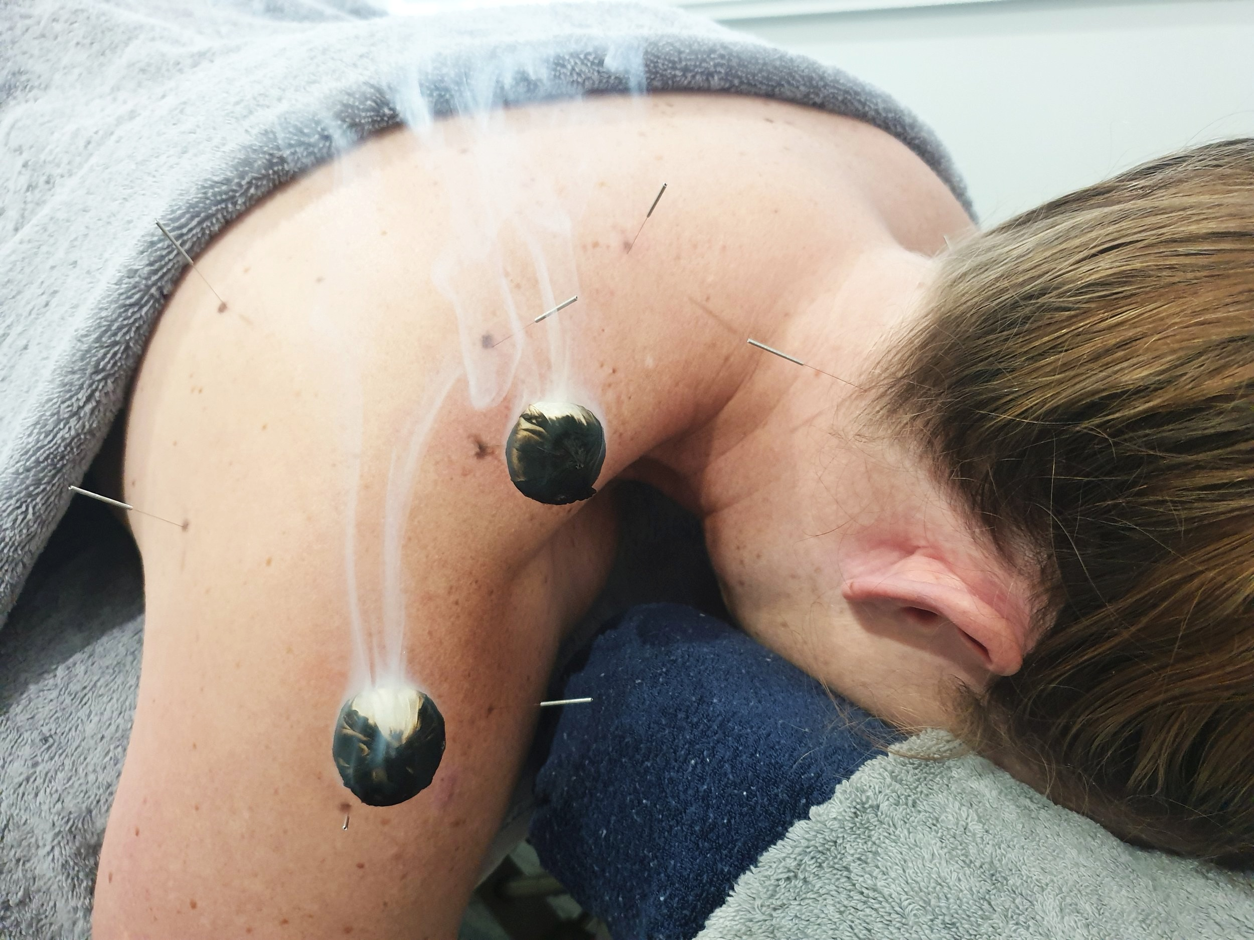 Moxa on the needle for shoulder bursitis at our Gold Coast acupuncture clinic