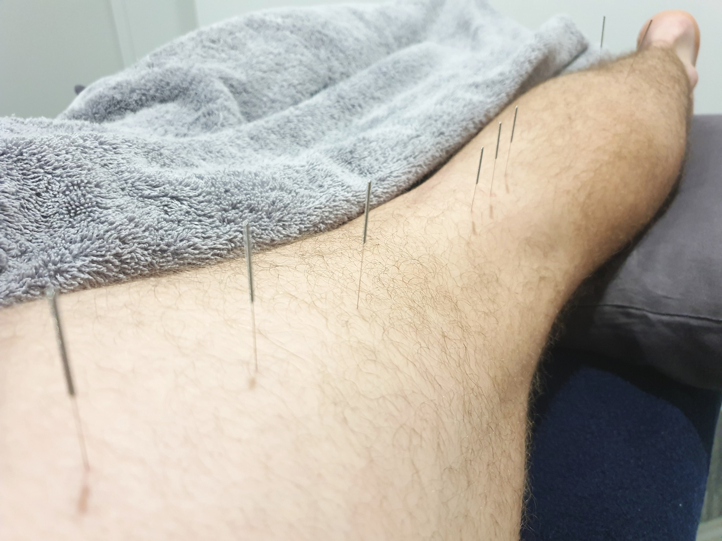 Acupuncture needling for an ACL injury at our Gold Coast acupuncture clinic.