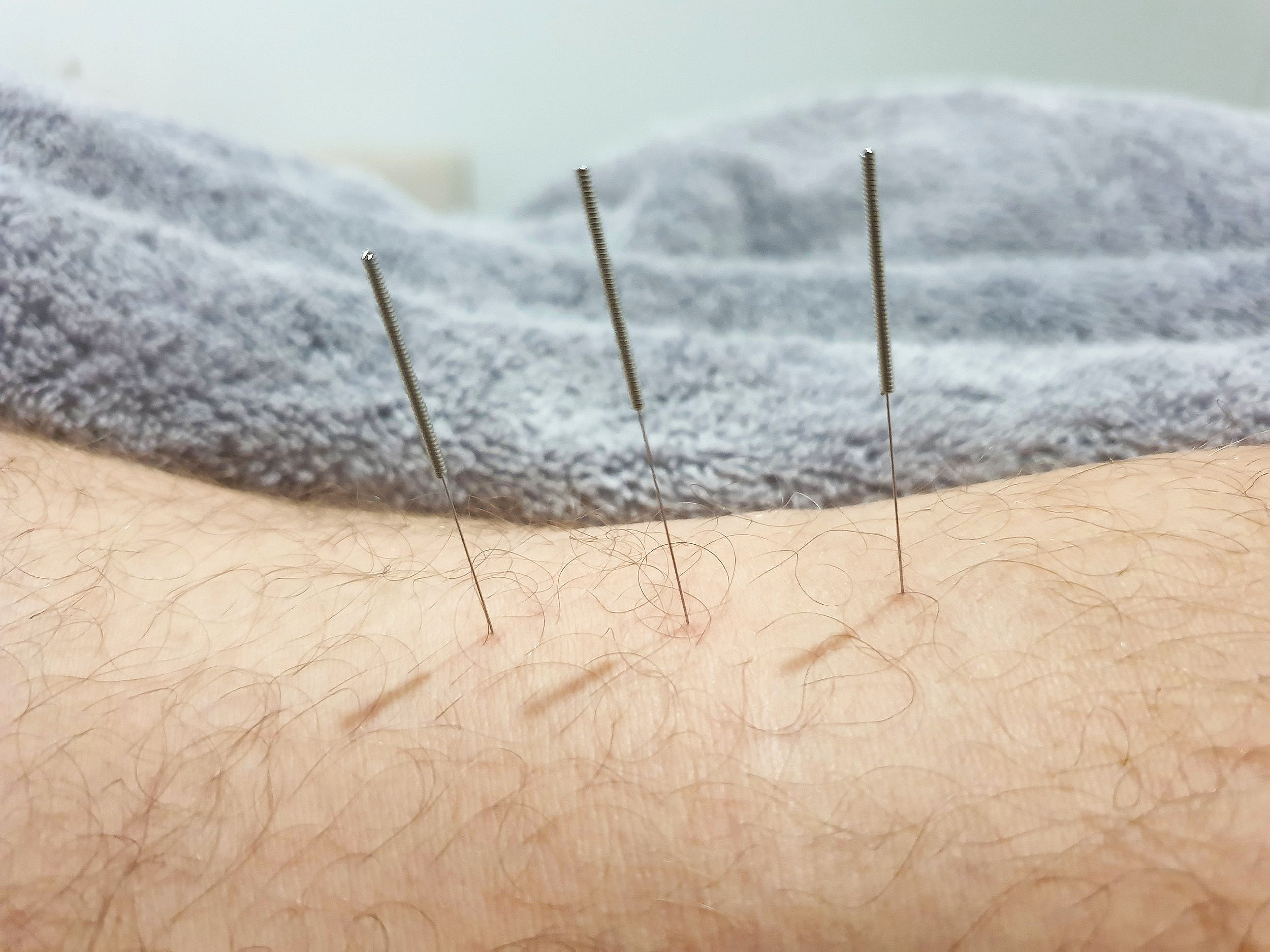 Needling the posterior aspect of the knee at our Gold Coast acupuncture clinic.