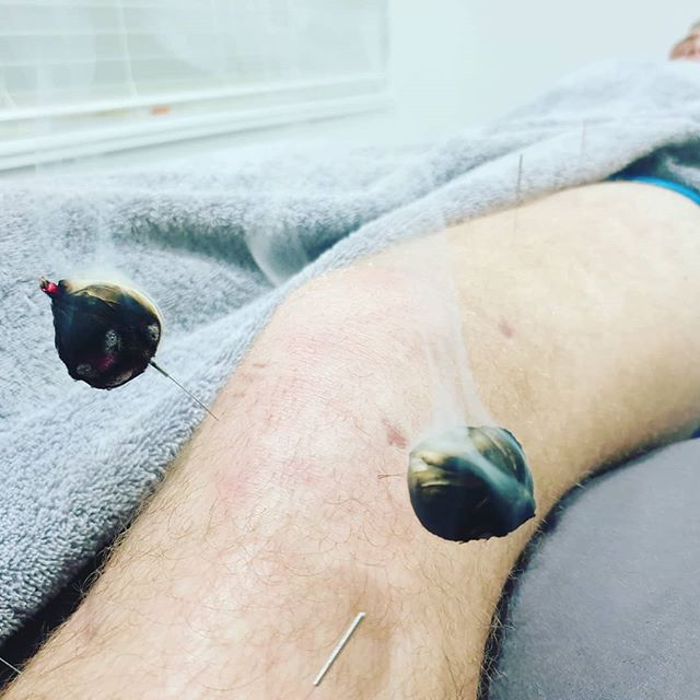 Not many people think of acupuncture for post-operative pain. We have found acupuncture to be an exceptional adjunct therapy to rehabilitation of ACL reconstructions and knee replacements. Get further faster.  Visit our website www.traditional-acupuncture-clinic.com for more information.  #traditionalacupuncture_gc #acupuncture #acupuncturist #chinesemedicine #goldcoast #goldcoaststyle #goldcoasthealth #healthygoldcoast #healing #naturalmedicine #aclrecovery #aclrehab #kneesurgery