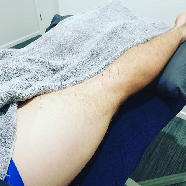 Get further faster. Acupuncture has an excellent ability to relieve postoperative pain. One of our patients using acupuncture after ACL reconstruction.  Visit our website www.traditional-acupuncture-clinic.com for more information.  #traditionalacupuncture_gc #acupuncture #acupuncturist #chinesemedicine #goldcoast #goldcoaststyle #goldcoasthealth #healthygoldcoast #healing #naturalmedicine #aclrehab #aclrecovery #kneesurgery