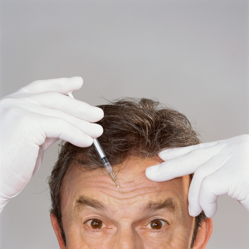 "BOTOX® - BOTOX® was developed to treat the visual signs of aging by reducing or removing wrinkles. This common procedure is considered to be a relativity safe, painless, and highly effective way of treating aging skin. Common signs of aging treated with BOTOX® injections include horizontal forehead wrinkles, vertical lines between the eyebrows, and ""crow's feet"" around the eyes. BOTOX® has proven to be the best non-surgical form of facial rejuvenation and is capable of producing phenomenal improvements in skin appearance."
