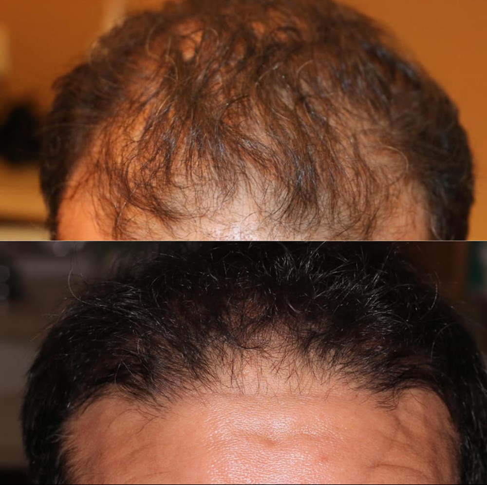 3 treatments, once per week. Before and after 4 weeks