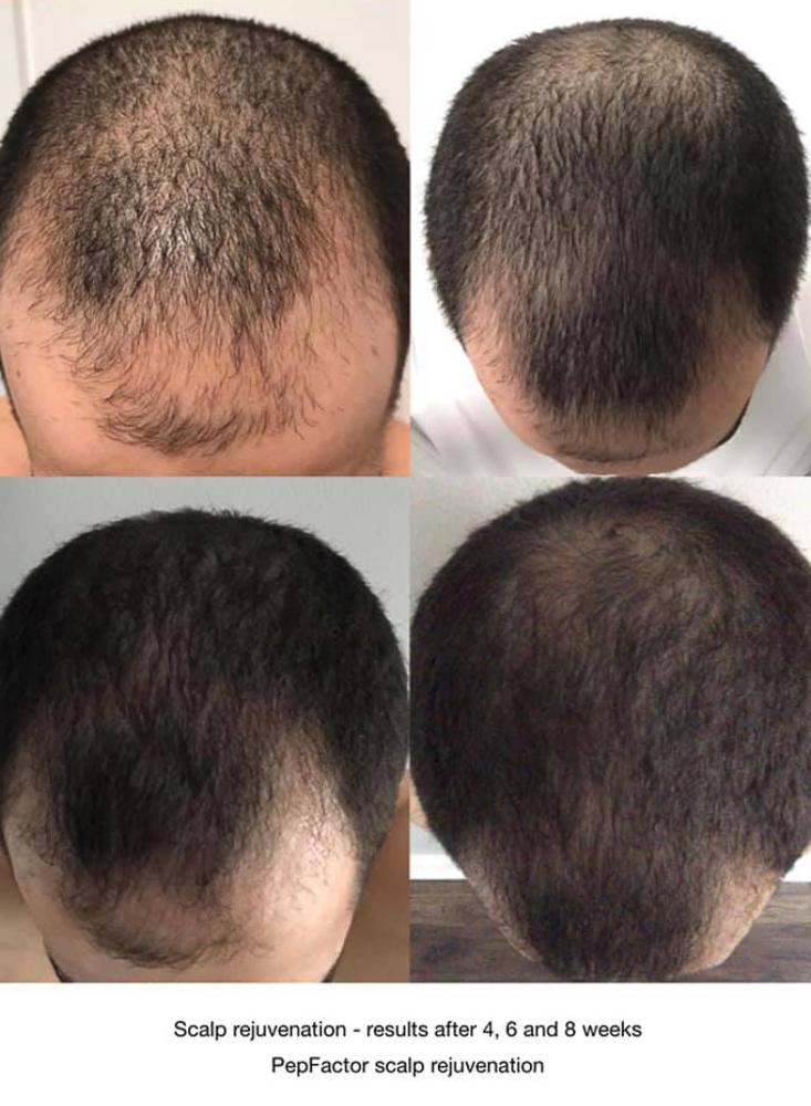 Jacksonville PepFactor Hair