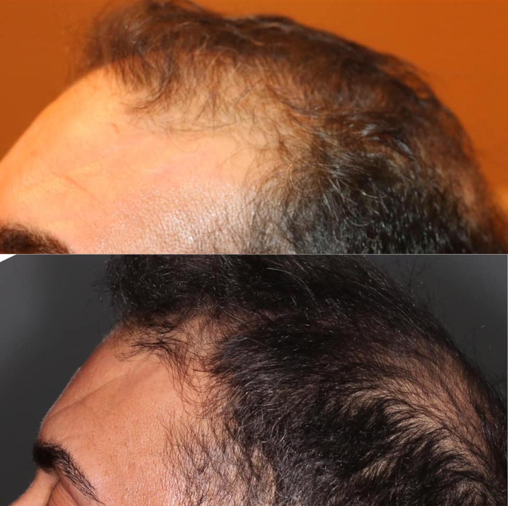 Jacksonville Hair Clinic