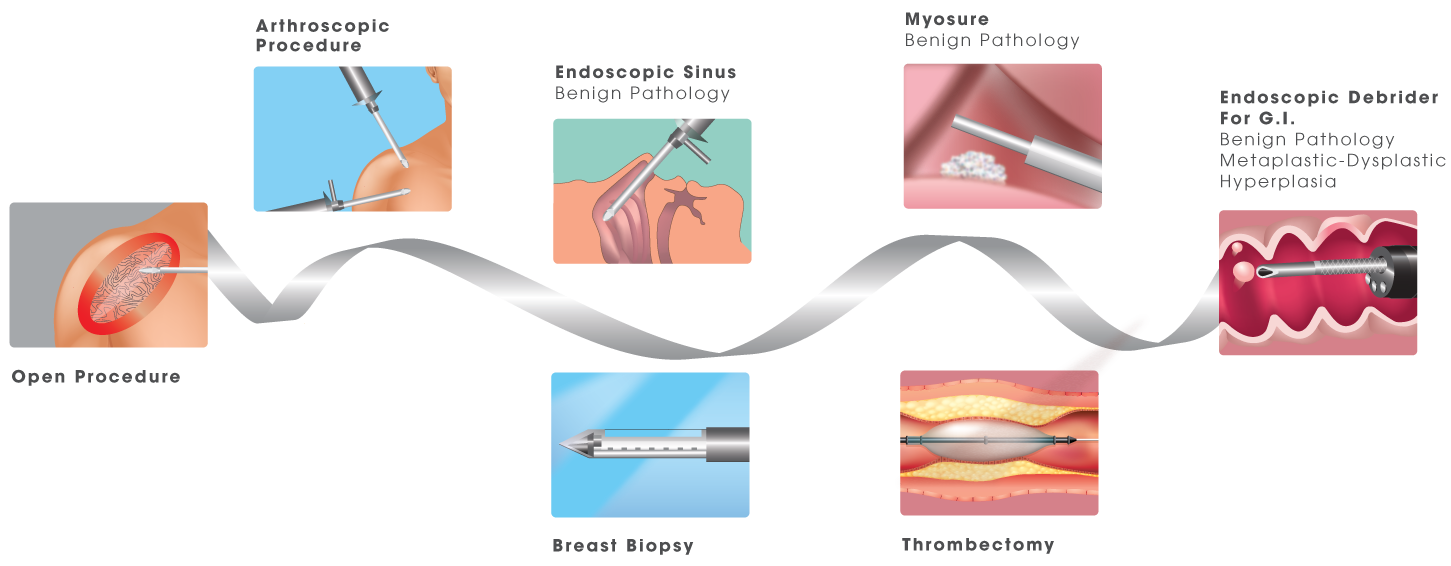 interscope-endorotor-advancement-in-endoscopic-tools.png