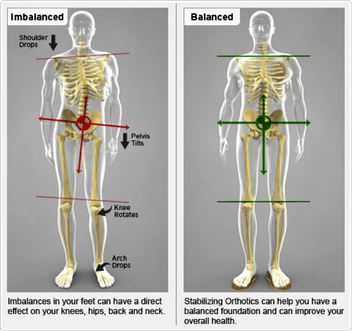 Image of benefit of orthotics as part of chiropractic care, Little Rock.