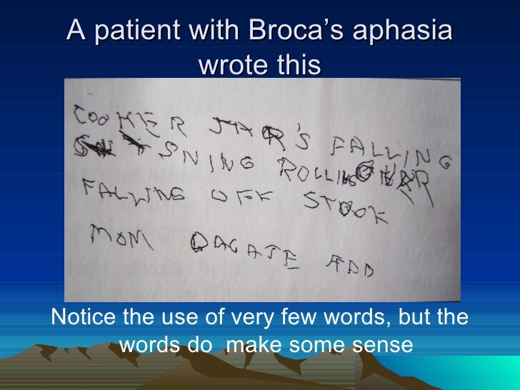 A writing example from a patient with Broca's aphasia (non-fluent). Example was found from this  presentation .