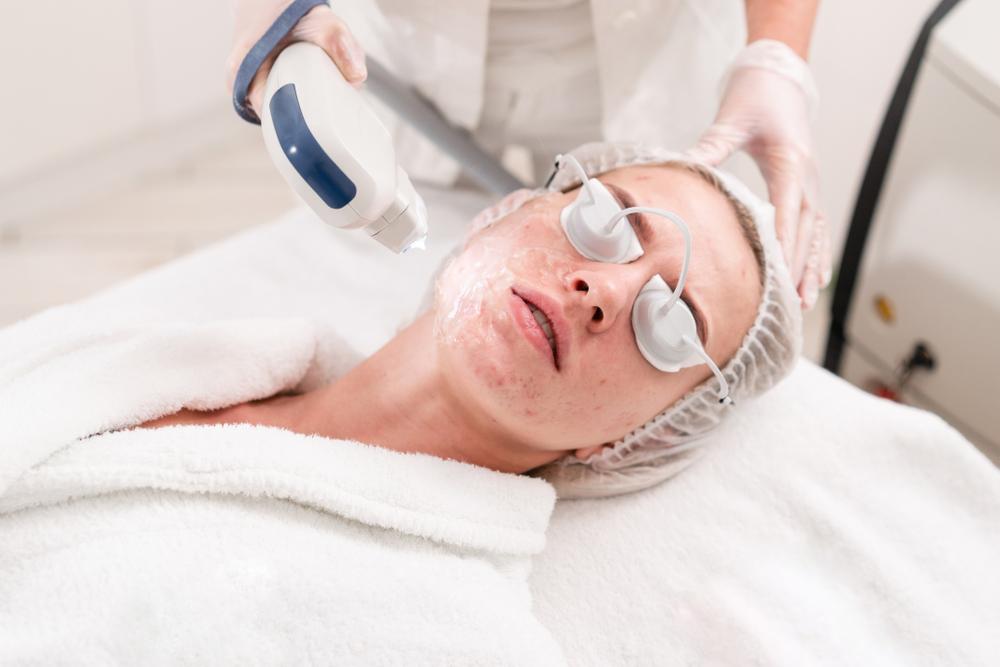 Skin Rejuventation Photofacial